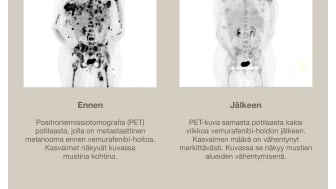 PET-scan ennen ja jälkeen