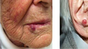 Ovanlig hudcancersjukdom ökar - triggas av solen och kopplas till vanligt virus