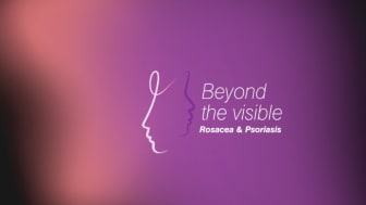 Undersökningen belyser patienternas upplevelser av att leva med rosacea eller psoriasis i ansiktet samt läkarnas behandling av dessa sjukdomar.