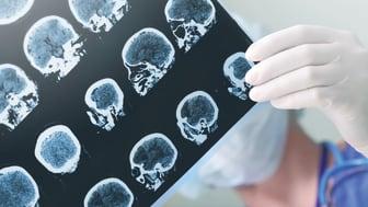 Nu närmar vi oss den första bromsmedicinen mot Alzheimer: Vad betyder genombrottet för patienter och sjukvården?