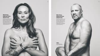 """Två av de fyra bilder som ingår i CancerRehabFondens annonsserie """"När ärren bleknat finns såren kvar""""."""