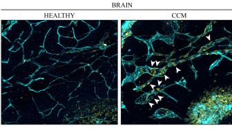 Blodkärl i hjärnan. Till vänster: endotelceller (turkosblå) från en frisk hjärna. Till höger: vid kavernöst angiom delar sig endotelceller (kärnor i gult) i venerna snabbare och orsakar missbildningar. Foto: Fabrizio Orsenigo
