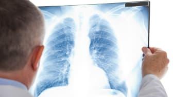 Förhöjda radonhalter i vår inomhusluft är den näst vanligaste orsaken till lungcancer