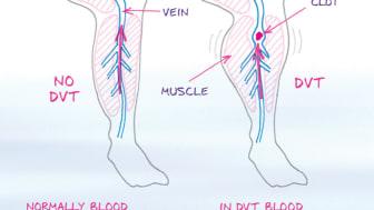 DVT, blodpropp i benet. Illustration