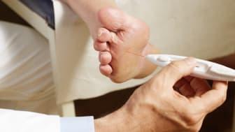 Bei Diabetikern wird die Berührungssensibilität mittels 10-g-Monofilament untersucht. Bild: Visionär | fotolia