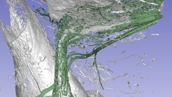 Synkrotronröntgen av organen i innerörat. Kärlen som har getts en grön färg på bilden tros suga upp och rengöra vätskan i innerörat.