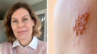 Anna Grahn, docent och avdelningsöverläkare vid Infektionskliniken på Östra sjukhuset i Göteborg, har varit med och tagit fram NetdoktorPro:s fortbildning om bältros.