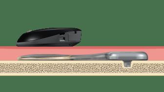 Schaubild - Cochlear™ Osia® System