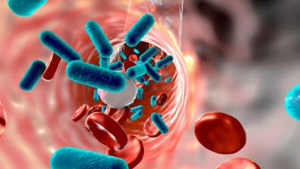 EARLY DETECTION OF SEPSIS COULD SAVE THOUSANDS