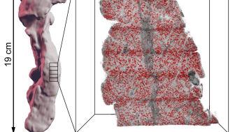 Avbildad bukspottskörtel med ny metod