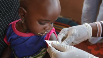 Ettåriga Aisha får behandling mot undernäring vid ett sjukhus i nordöstra Nigeria som arbetar med stöd från Rädda Barnen. *Namnet är fingerat och bilden publiceras med tillåtelse från Aishas familj.