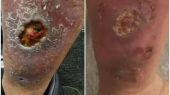 Man med 14 mån gammalt svårläkt sår, 1 vecka mellan bilderna, Erchonia laser