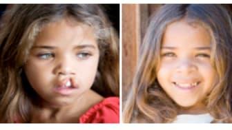 Praktikertjänst hjälper Operation Smile att sprida leenden