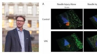 Viktiga in vivo-resultat banar väg för klinisk studie