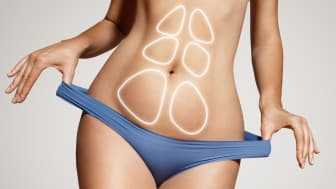 It is now scientifically proven that combining liposuction and exercise therapy contributes to a plethora of health benefits, including reducing cardiovascular risks.
