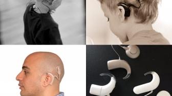 Patienter med cochleaimplantat prioriteras