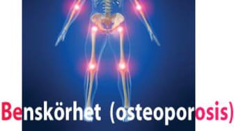 Varje år sker ungefär 10 000 frakturer i Skåne som är relaterade till osteoporos (benskörhet). Detta till en kostnad av knappt två miljarder kronor.