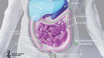 Koloskopie und Sigmoidoskopie - zwei Untersuchungsmethoden des Darms