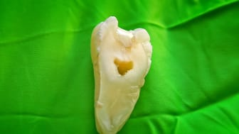 En tand som delats i två delar och som lagats med forskarnas nya material. Foto: David Callahan.
