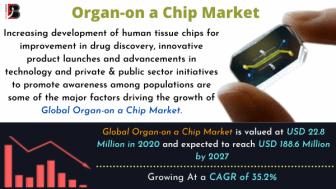 Organ-on a Chip Market