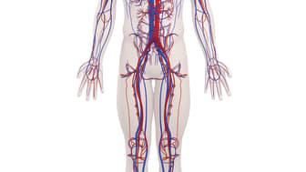 Bayer får positivt utlåtande från CHMP för rivaroxaban (Xarelto) till patienter med kranskärls- eller perifer artärsjukdom