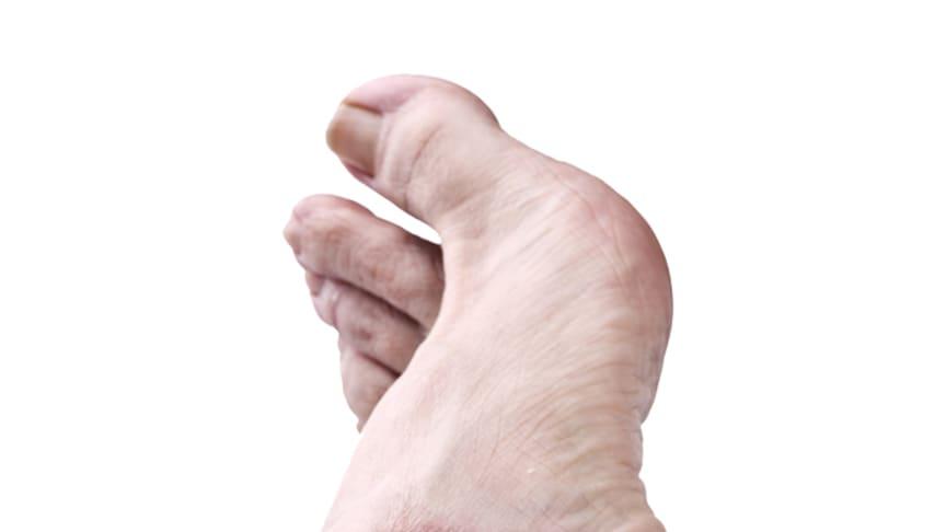 Oftmals liegen mehrere Jahre zwischen dem Auftreten einer Psoriasis (Schuppenflechte) und dem Hinzukommen der Psoriasis-Arthritis. Bild: Orlando Bellini | fotolia