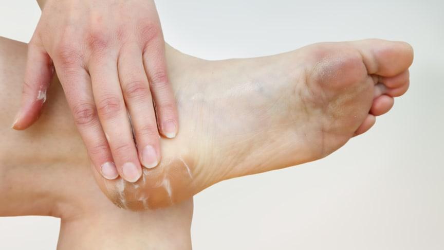 Cremen gegen trockene Haut und Hornhaut. Bild: Edler von Rabenstein | fotolia