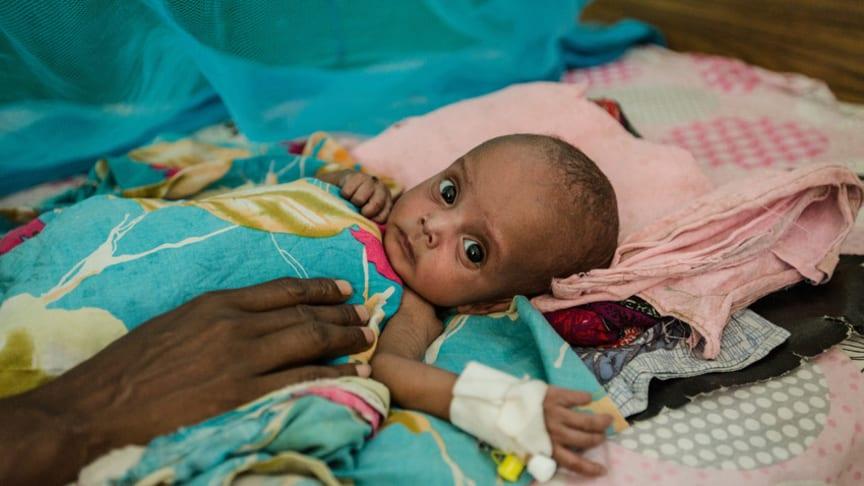 Dahir, sex månader gammal, får behandling på Rädda Barnens mottagning för akut undernärda i Borama, Somaliland. Foto: Colin Crowley/Rädda Barnen