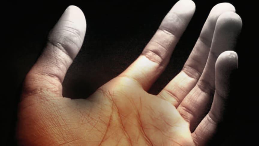"""Vad är """"White Finger""""?"""