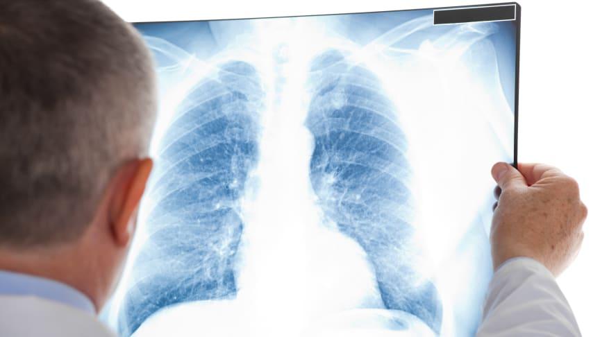 Enligt Strålsäkerhetsmyndigheten drabbas varje år ca 500 av lungcancer till följd av radon i svenska bostäder och arbetsplatser