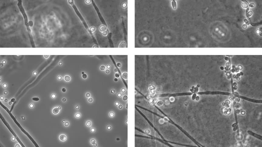 Lichtmikroskopische Bilder des Hefepilzes Candida albicans (DSM 1386); Quelle: DSMZ