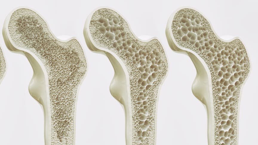 Stadien der Osteoporose