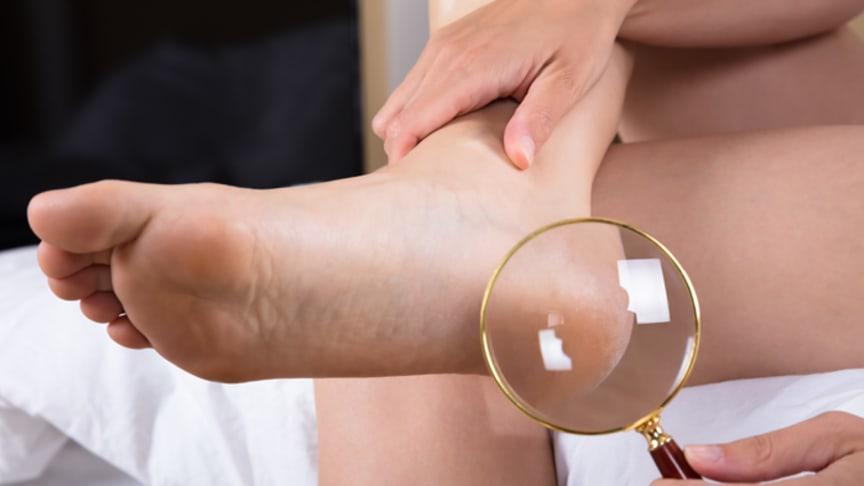 Schulungsziel für Diabetiker: die tägliche Kontrolle der Füße. Bild: Andrey Popov | fotolia