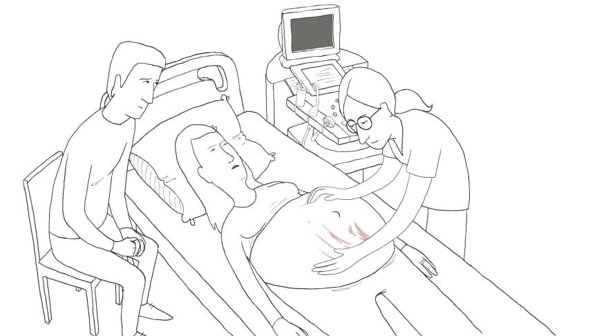 Multi award-winning filmmaker creates breech pregnancy animation