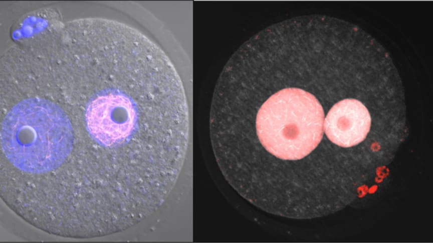 Specialized structure inside fertilized egg discovered by this research. Two fibrous structures can be seen inside nucleus.