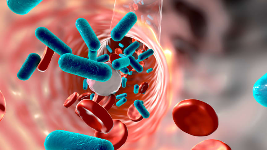Patient monitoring system detects early signs of sepsis