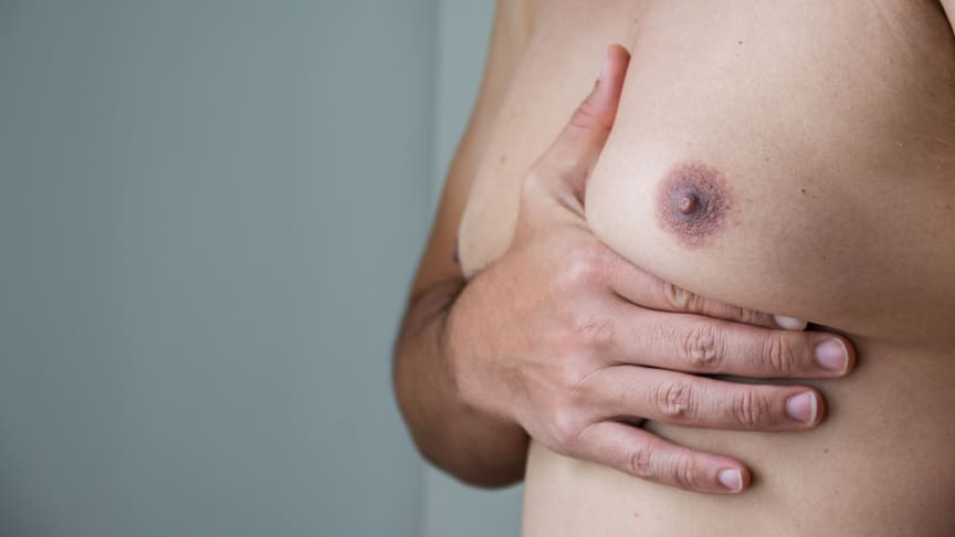 Men above 44 years old, especially those taking prescription medications, were found to be more susceptible to experiencing palpable gynecomastia, a medical condition that causes enlarged man breasts.
