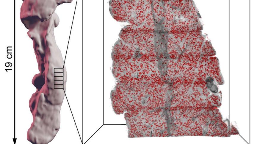 Illustration av hur en bukspottkörtel kan delas i mindre delar som färgas in för specifika celltyper med de insulininfärgade Langerhanska cellöarna i rött, som sedan sättas samman i en dator som ett tredimensionellt pussel.