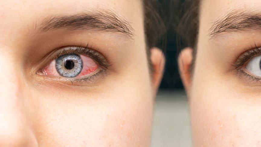 Wenn sich das Augenweiss verfärbt: Das sollten Sie wissen