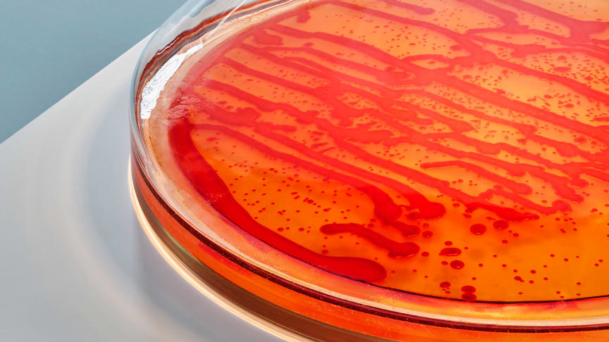 Bacteria in a new light av Jan Klingler. © Inter IKEA Systems B.V. 2020