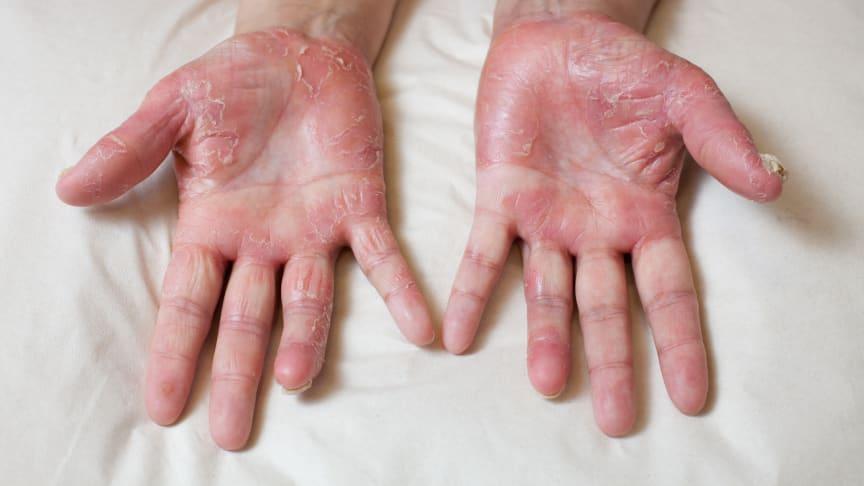 psoriasis på händer