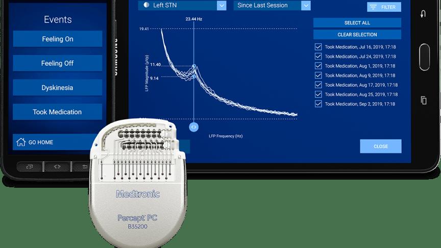 PERCEPT™ PC NEUROSTIMULATOR, ET DBS-SYSTEM MED BRAINSENSE™-TEKNOLOGI