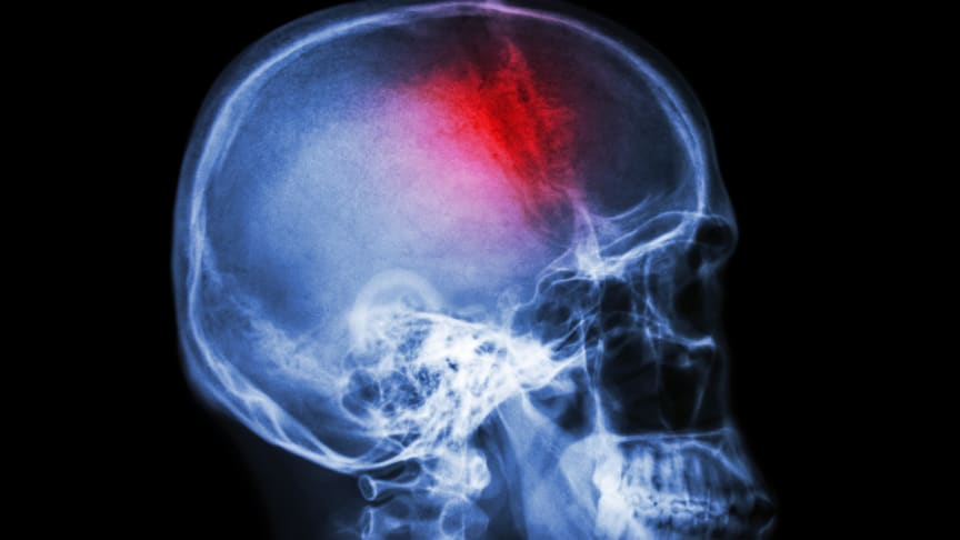 Thousands could benefit from revolutionary stroke treatment