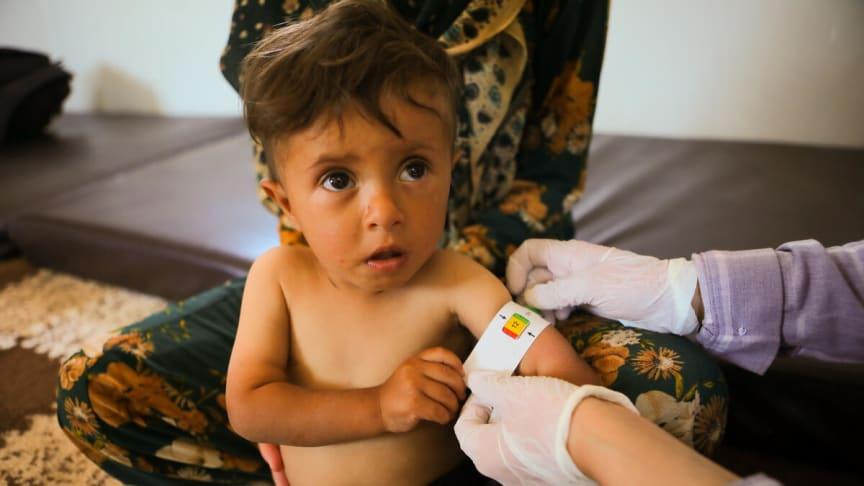 Majad är 18 månader och på bilden mäts hans  arm för att se om han är undernärd.