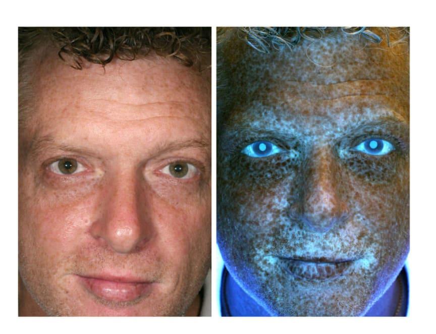 UV-kameran avslöjar var solexponeringen varit hög, dessa områden är extra känsliga.