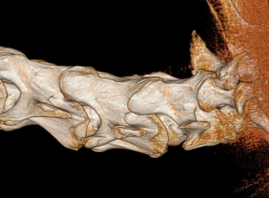 Halskotpelare i 3D