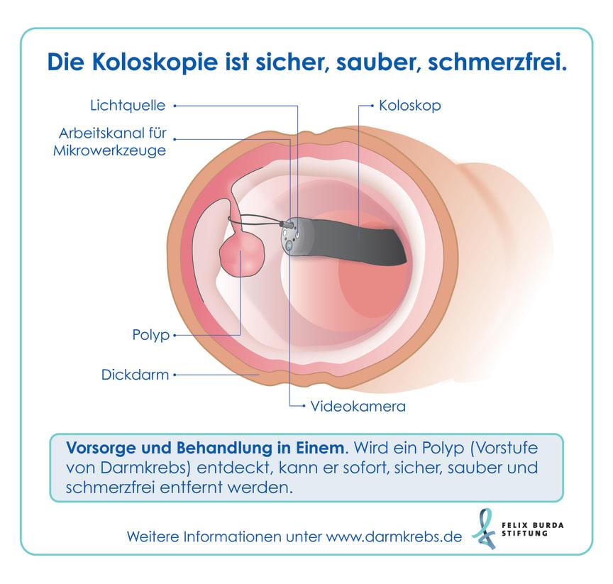 Nur bei der Darmspiegelung können Vorstufen von Darmkrebs entdeckt und gleich entfernt werden.