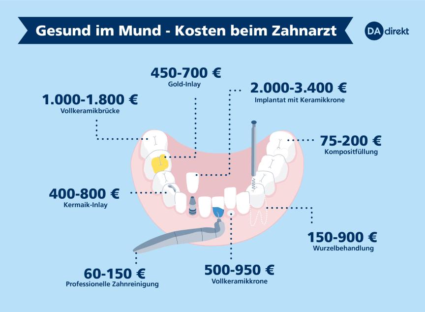 dadirekt-zahnarzt-kosten-150dpi