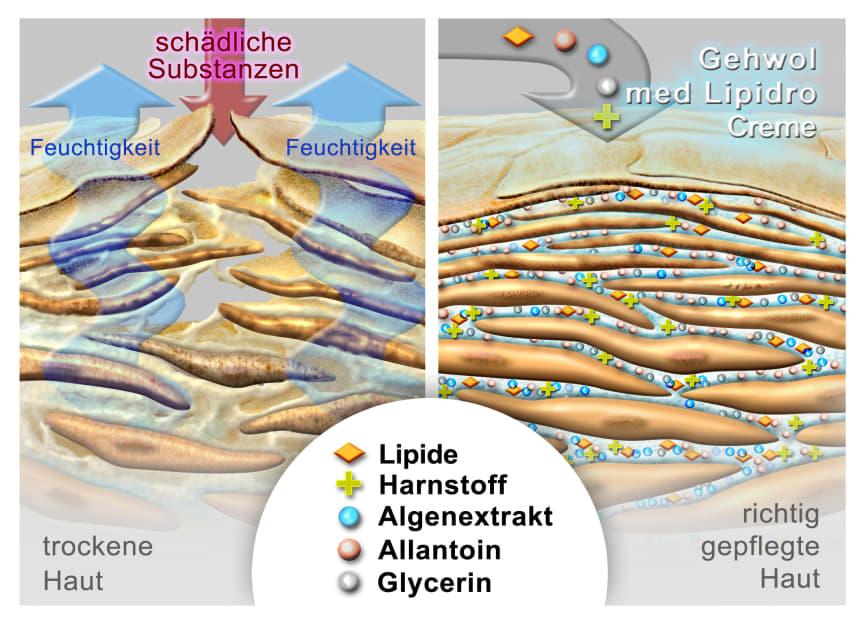 Wie entsteht trockene Haut?