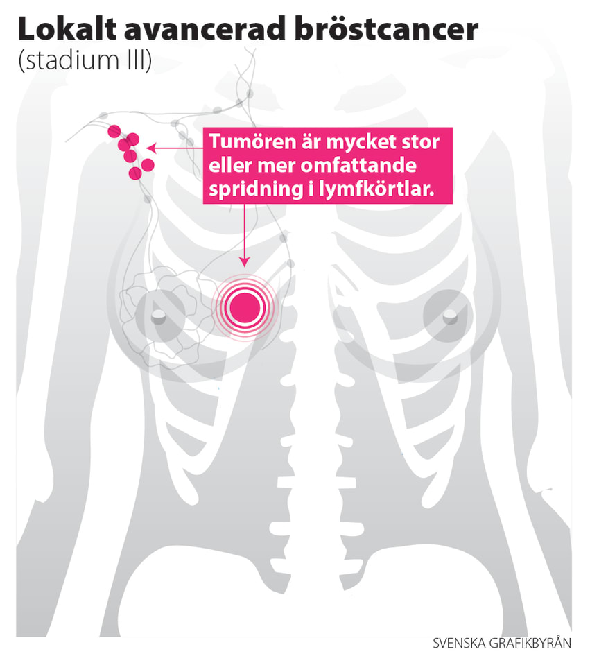 bröstcancer spridd till lymfan